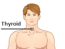 thyroid symptoms and causes